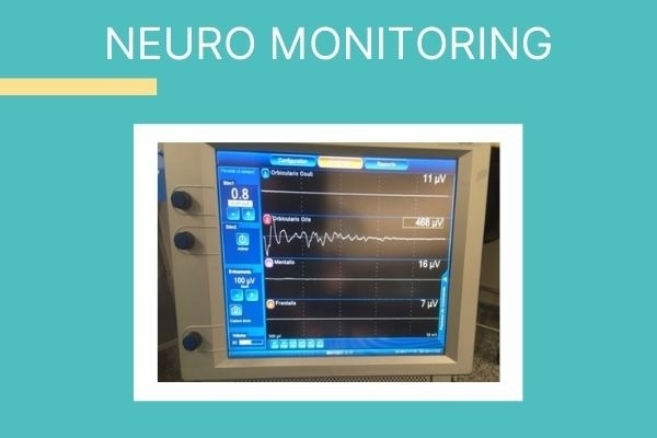 neuro monitoring